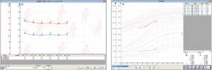 Medicom-HRkⅢデータのグラフ化イメージ